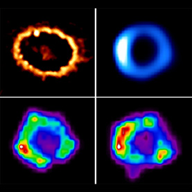 Hubble, Chandra and ...  images of SN1987A