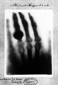 Mrs. Rontgen's hand X-ray